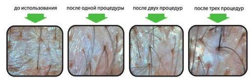 Регенерация кожи в домашних условиях